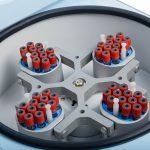 Типы роторов для центрифуги: бакет-ротор и ротор с фиксированным углом